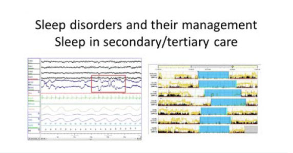 Dr Alanna Hare explains the assessment of sleep disorders in primary care.