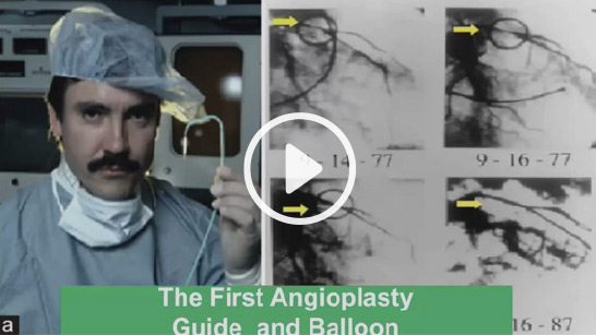 The First Angioplasty Guide